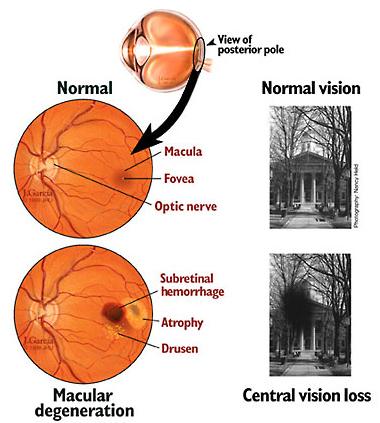 macular degenration